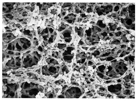 Acetate Membrane